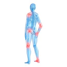 home-arthritis